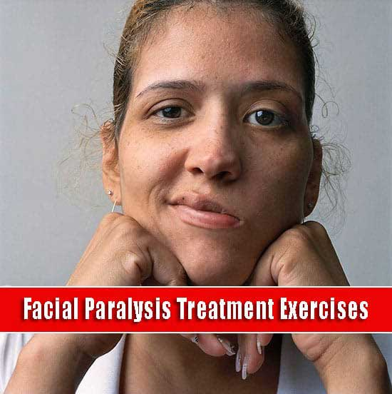 Facial Paralysis Treatment Exercises